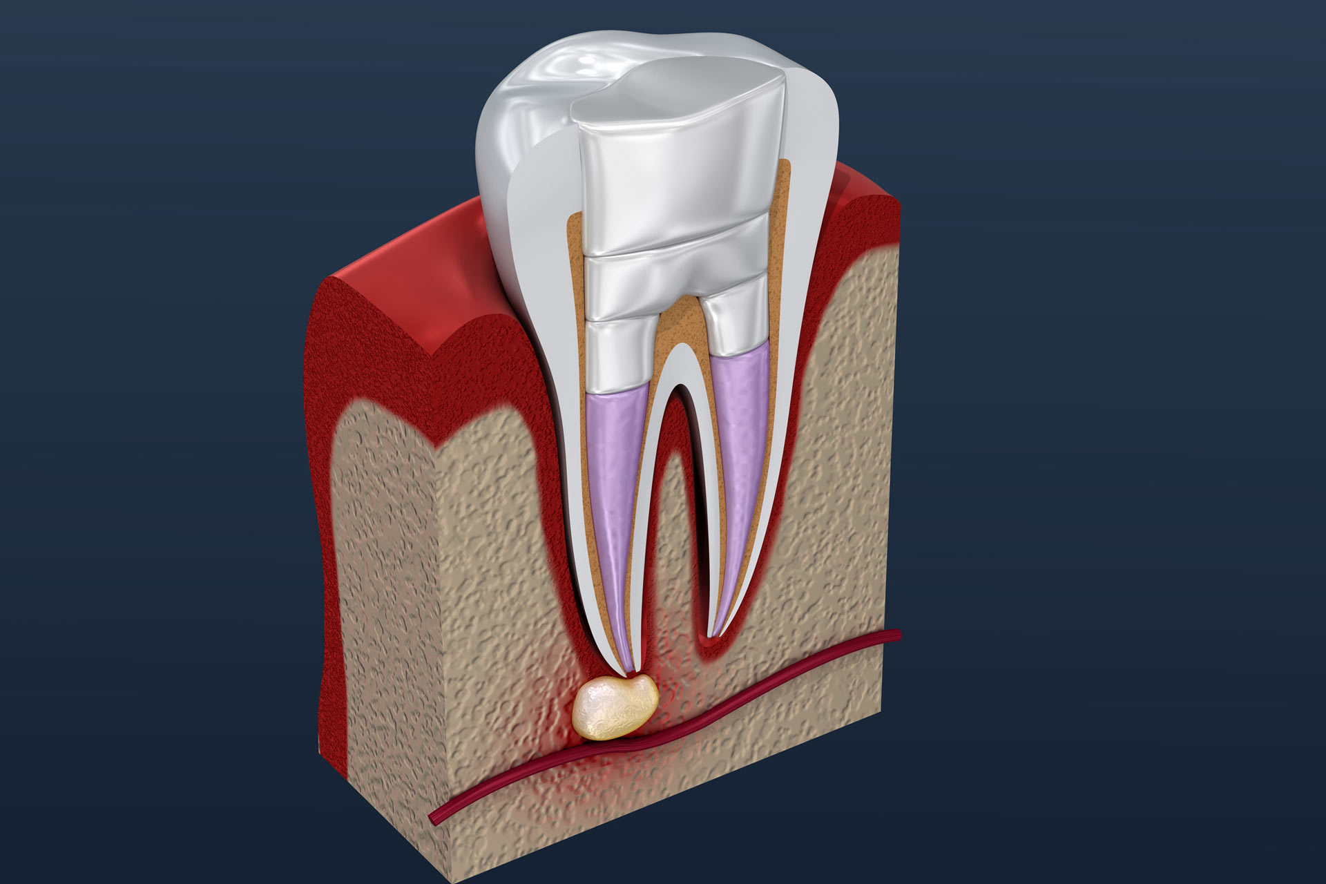 How a Root Canal Treatment Works
