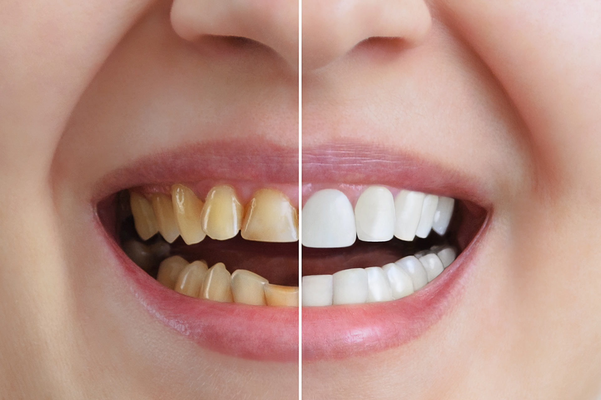 Achieve the Perfect Smile with Cosmetic Dental Treatment