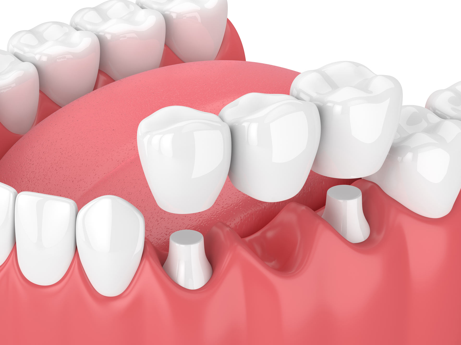 Fillings, Crowns, Bridges: What's the Difference?