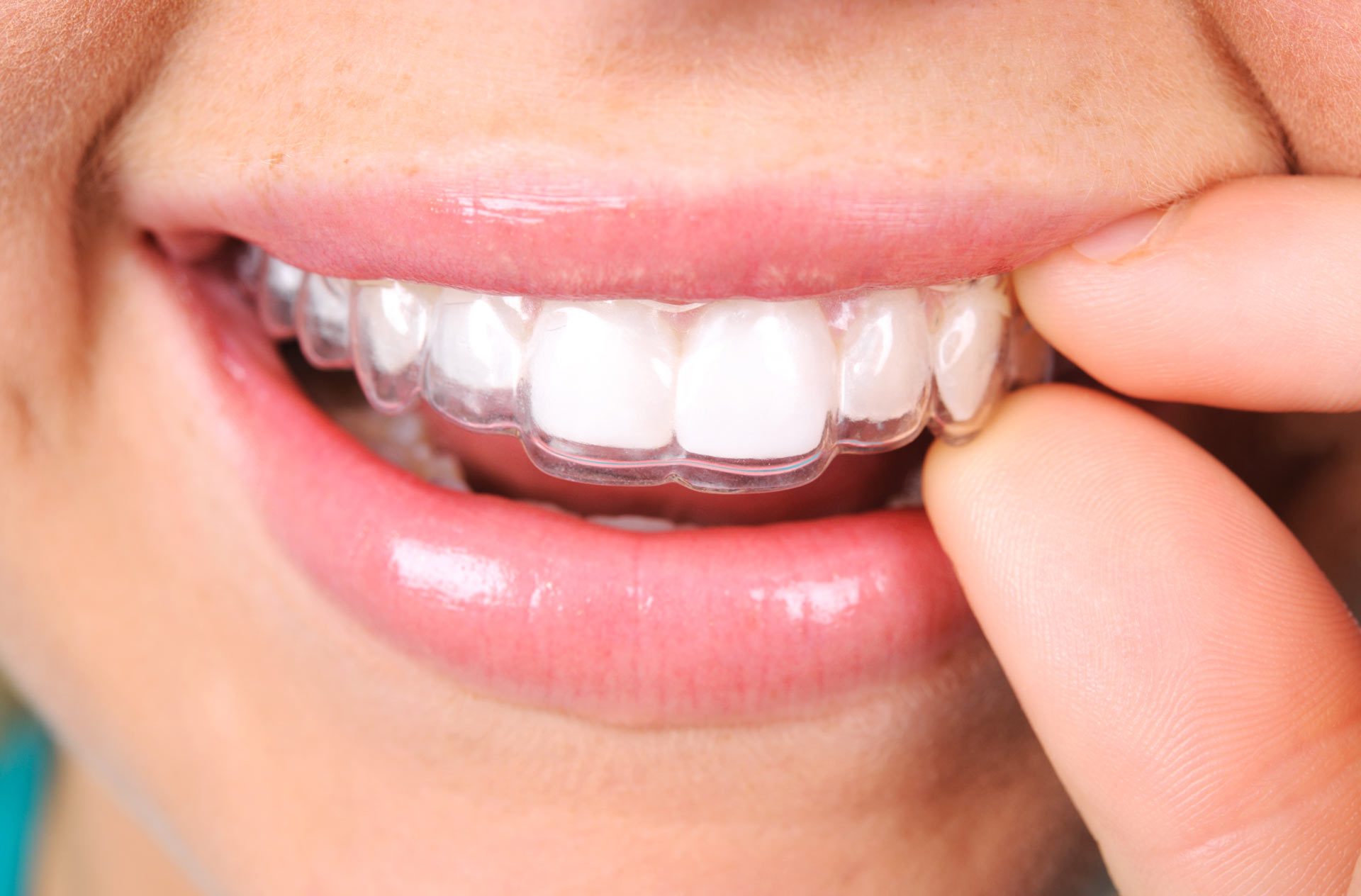 Discover what to expect through the process of Invisalign® Treatment