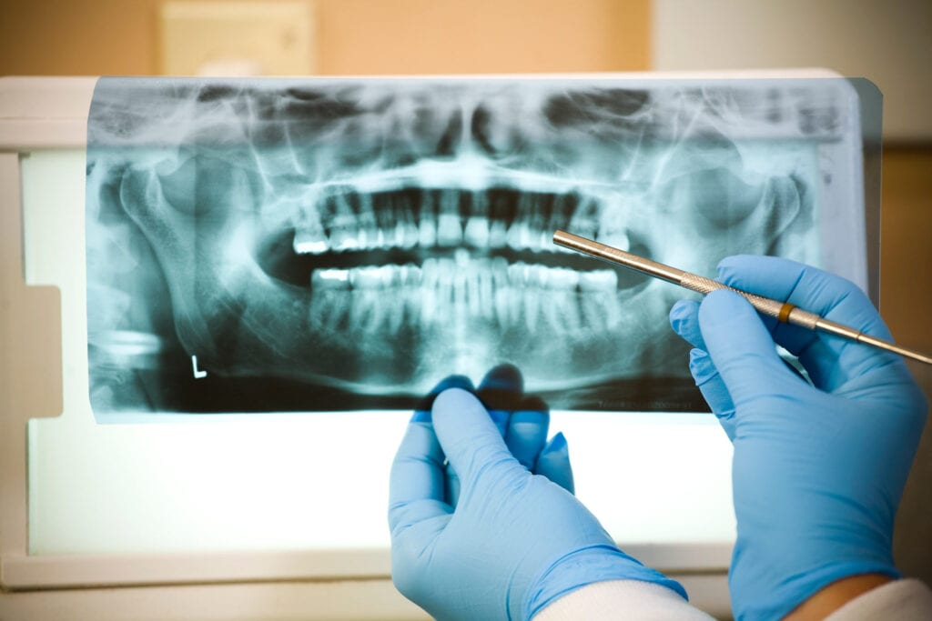 Root Canal Xrays