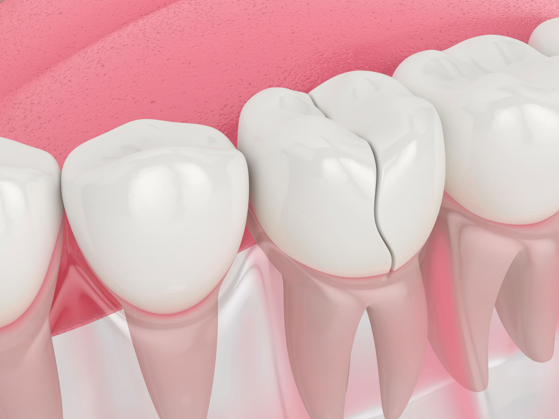 Treating a Chipped Tooth Instead of Extraction