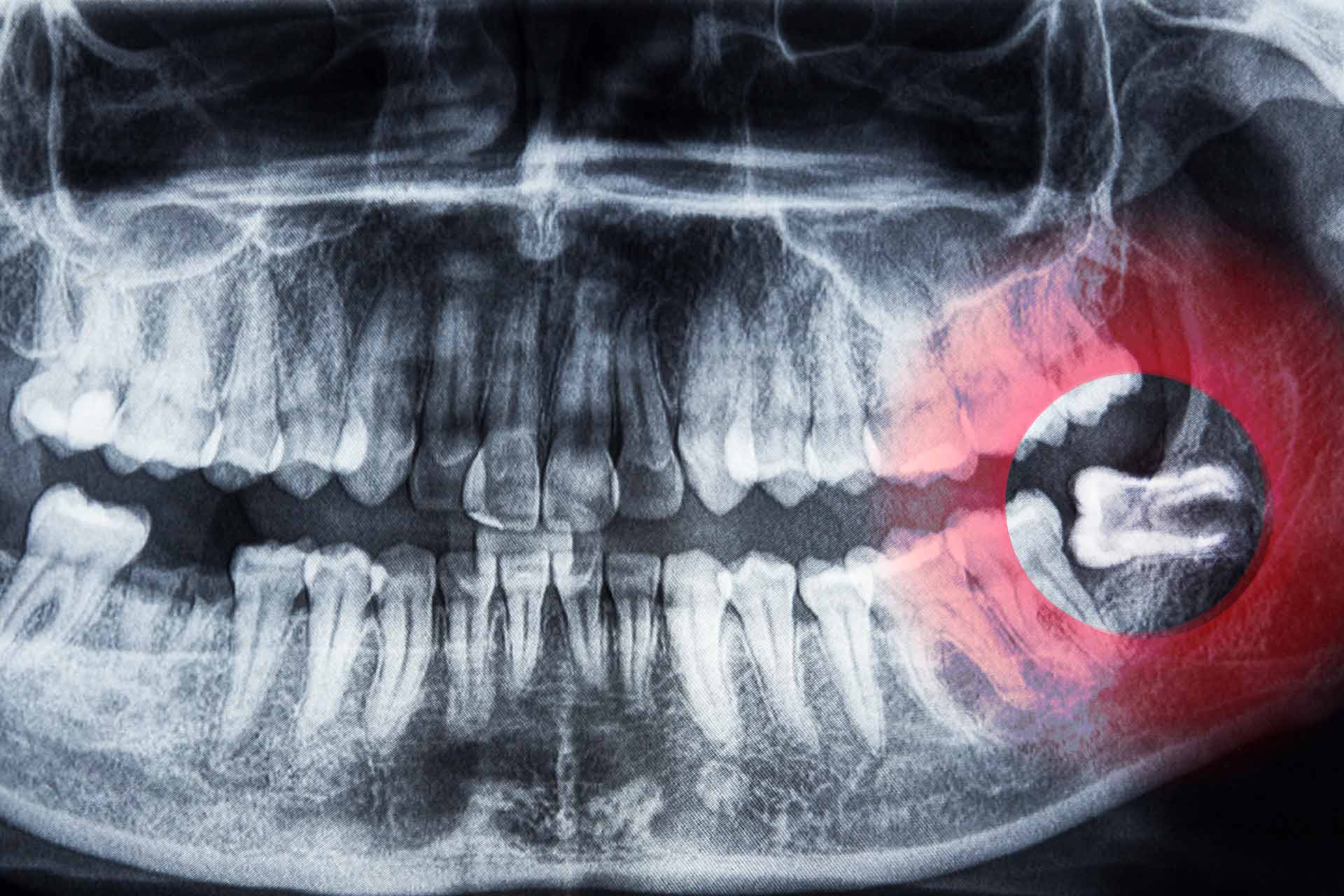 Wisdom teeth: why and when they need extracting